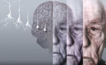 Speaking two languages may delay dementia: study