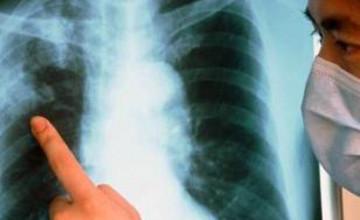 Қазақстанда туберкулезбен ауыратын әр науқасқа жылына 2 млн. теңгеге жуық ақша бөлінеді