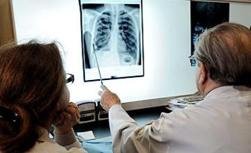 Туберкулез в открытой форме выявили у помощника воспитателя детсада в Атырау