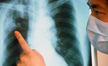 Минздрав РК связывает высокие показатели заболевания туберкулезом с самолечением