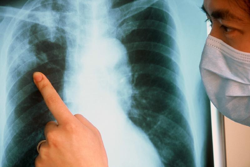 За полгода более 200 заболевших туберкулезом выявили в Атырауской области