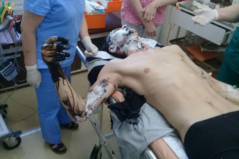 Учитель обварился битумом при ремонте школы в Акмолинской области