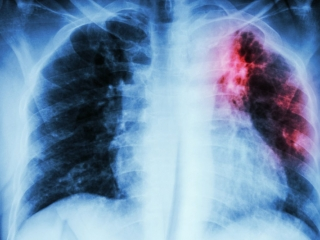Study identifies new potential therapeutic target in lung cancer